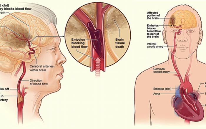 Bệnh nhân rung nhĩ có nguy cơ đột quỵ cao