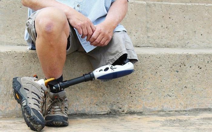 Chế tạo thành công chân giả mà người khuyết tật có thể cảm nhận được