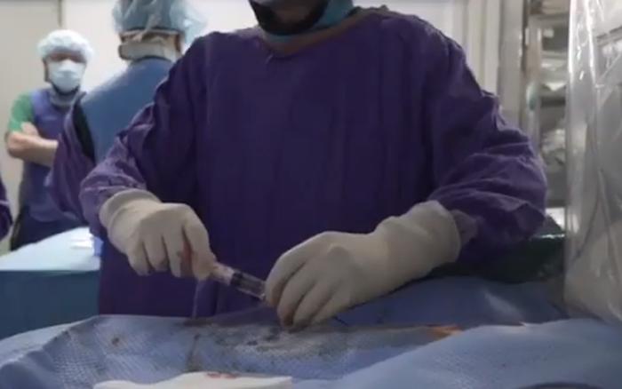 Thêm cơ hội cho bệnh nhân ung thư gan bằng phương pháp điều trị mới