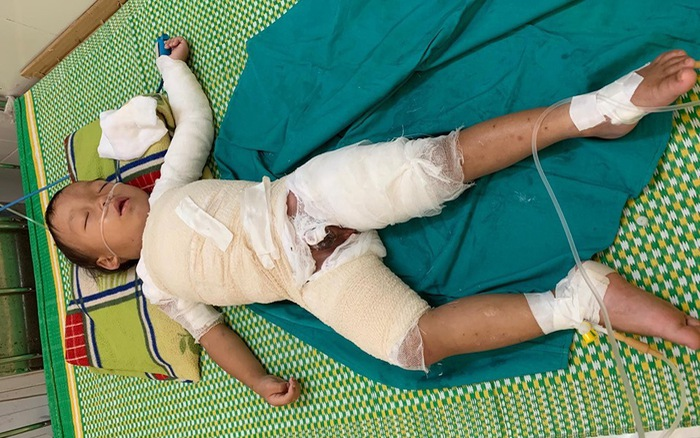 Bé trai hơn 3 tuổi người Mông bị bỏng nước sôi nguy kịch cần giúp đỡ