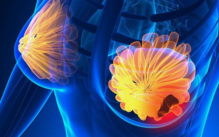 Liệu pháp chỉnh sửa gen giúp ngăn ung thư vú phát triển