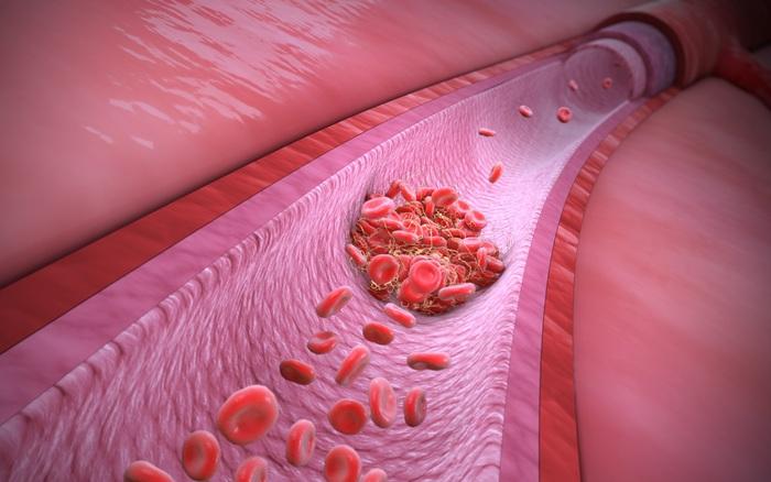 Thuỵ Sỹ nghiên cứu cơ chế COVID-19 gây ra tình trạng máu đông