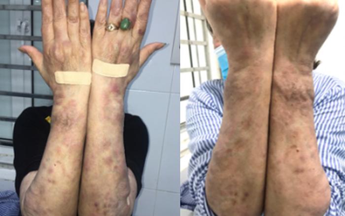 Hà Nội: Xuất hiện ca bệnh phong thể nhiều vi khuẩn, giống với Lupus ban đỏ hệ thống