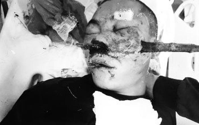 Cứu nam thanh niên bị cành cây đâm xuyên vùng mũi