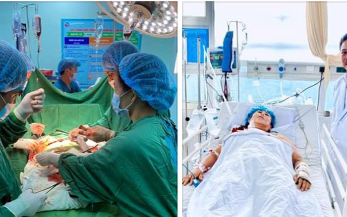 Vỡ gan, vỡ lách, mất hơn 4 lít máu do tai nạn giao thông