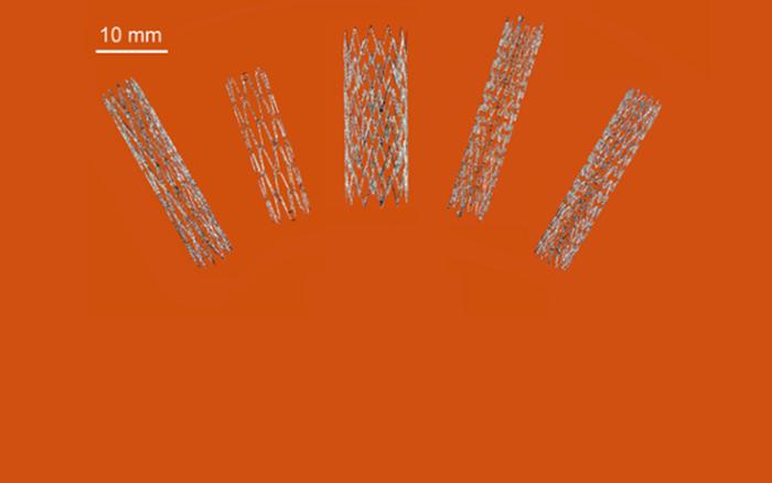 Australia đột phá trong sản xuất stent nhờ công nghệ in 3D