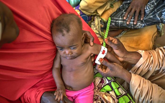 Suy dinh dưỡng gây thiệt hại lên tới 850 tỷ USD tại các nước đang phát triển - kết quả xổ số vĩnh long