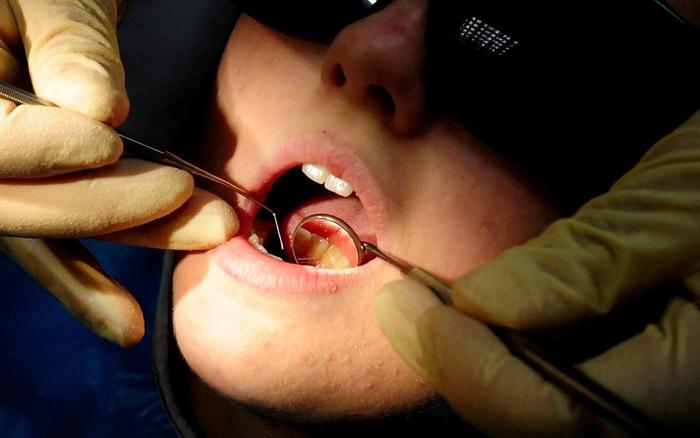 Lười đánh răng, coi chừng nguy cơ ung thư miệng và dạ dày