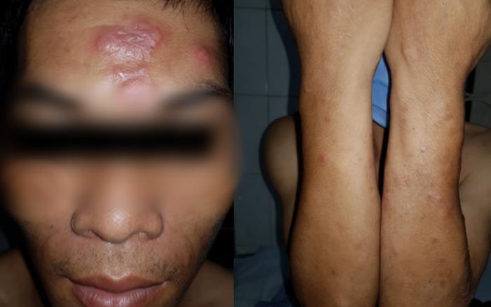 Phát hiện một ca mắc bệnh phong ở Lạng Sơn