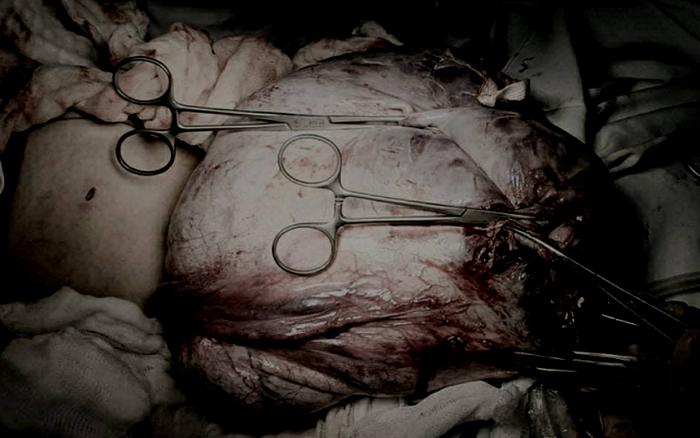 5 giờ phẫu thuật cắt u buồng trứng nặng gần 12kg ở bé gái 13 tuổi