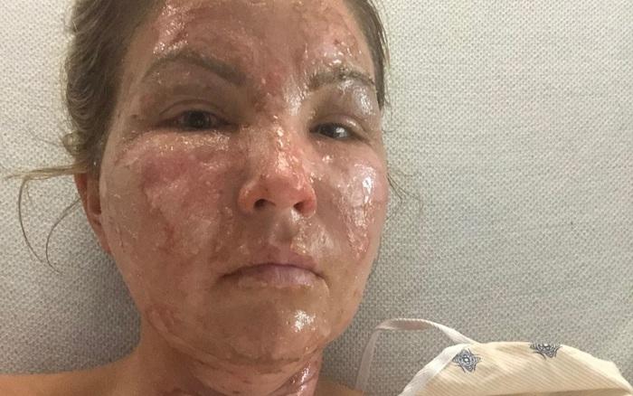Dùng nước rửa tay khô không rõ nguồn gốc, một phụ nữ Mỹ bị bỏng nặng