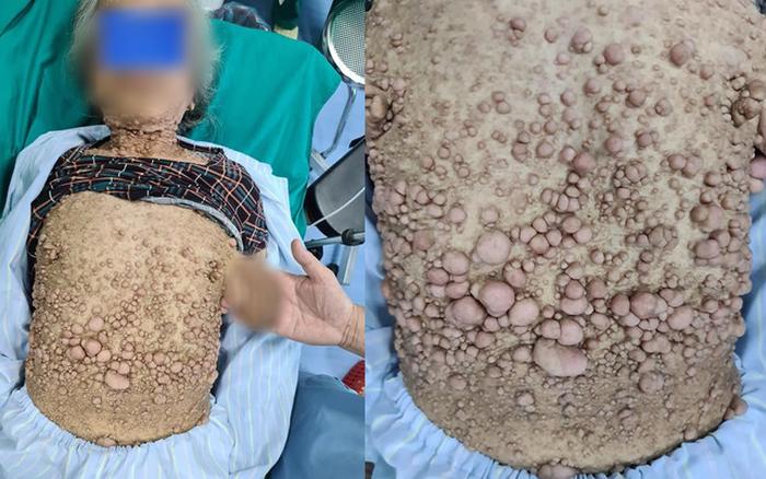 Cụ bà có hàng nghìn khối u trên người, chính xác là loại bệnh gì?