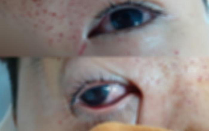 Tổn thương 2 mắt do chơi pháo diêm tự chế - quE1BAA3ng20cC3A1o20pqa20lE1BBABa20C491E1BAA3o
