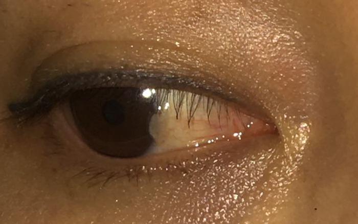 Cô gái ân hận vì chủ quan với sức khỏe của đôi mắt - giá vàng 9999 hôm nay 221