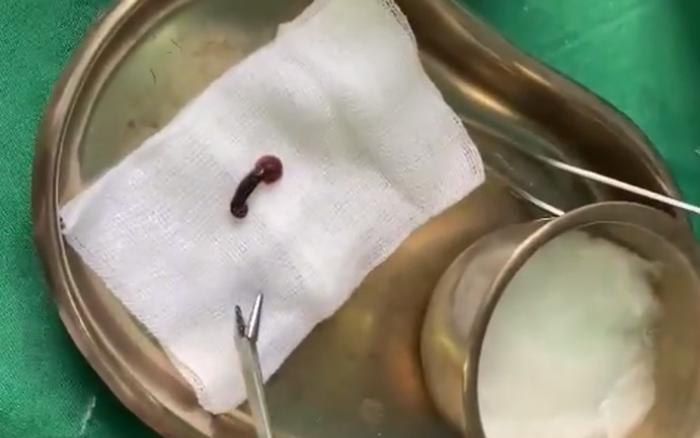 Bị chảy máu mũi khi đi chăm người nhà, bác sĩ khám phát hiện đỉa sống ký sinh - xs thứ ba
