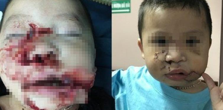 Bé trai 2 tuổi bị chó cắn nát mặt