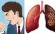 5 dấu hiệu sớm của ung thư phổi