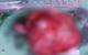 Phẫu thuật thành công khối u đầu - thân tụy lớn bậc nhất thế giới