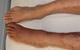 Những nguy cơ tiềm ẩn dễ nhầm lẫn của đau xương khớp