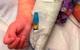 Mỹ bắt đầu nghiên cứu triệu chứng viêm đa hệ thống ở trẻ em