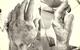Bệnh nhân đái tháo đường bị nhiễm trùng, hoại tử mu bàn tay do tự ý điều trị