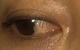 Cô gái ân hận vì chủ quan với sức khỏe của đôi mắt