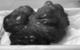 Căng chướng bụng, vào viện khám phát hiện khối u xơ nặng 5kg