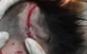 Trẻ 4 tuổi ở Hà Tĩnh bị chó cắn lóc da đầu phải nhập viện