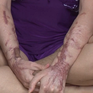 Những nạn nhân khốn khổ sống trong đau đớn vì bị tạt axit