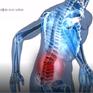 Phương pháp điều trị bệnh đau thắt lưng