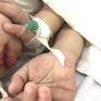 Trẻ mắc bệnh Kawasaki có biến chứng nặng gia tăng