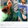 Sơn La: Bé 8 tuổi dập nát tay vì pin điện thoại phát nổ