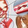 Tai biến mạch máu não: Dấu hiệu nhận biết và cách phòng bệnh