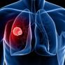 Ung thư phổi tăng gấp 4 lần, nguy cơ tử vong đứng hàng đầu