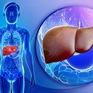 Phác đồ mới điều trị bệnh viêm gan virus C