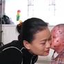 Việc tử tế: Người mẹ của những đứa con ly thượng bì bóng nước