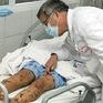 """""""Cháy"""" vaccine vì dịch não mô cầu có nguy cơ xuất hiện"""