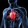 Điều trị sớm cholesterol cao giúp ngăn chặn nguy cơ bệnh tim mạch và đột quỵ