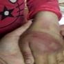 Bé gái 8 tuổi ở Thanh Hóa nghi bị bố đẻ bạo hành