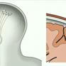 Tạo ra con chip gắn trong não người để kết nối với máy tính