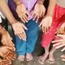 Ấn Độ: Cả gia đình 25 người đều bị tật thừa ngón