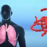 Việt Nam đối phó với dịch bệnh viêm phổi mới như thế nào?