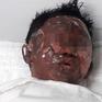 Điều trị tích cực cho cháu bé bị dì ruột đổ xăng đốt