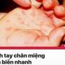 Tin nóng đầu ngày 15/7: Số ca tay chân miệng tăng nhanh, bắt đầu ca mổ tách dính song sinh hiếm gặp