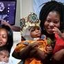 Italy: Tách thành công cặp song sinh 2 tuổi dính liền đầu