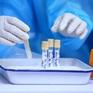 Vì sao xét nghiệm PCR của bệnh nhân COVID-19 đến lần 3 mới dương tính?