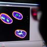 Liệu pháp gen có thể đảo ngược quá trình lão hóa