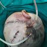 Điều trị thành công cho bệnh nhi bị chó cắn hở sọ não, vỡ nát xương thái dương