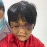 Bé gái 6 tuổi bị mẹ đẻ bạo hành thâm tím mặt