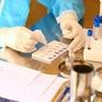 Cà Mau sẽ xử lý nghiêm hành vi nâng giá xét nghiệm COVID-19